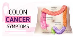 7 Dangerous Colon Cancer Symptoms And How To Diagnose Zerosize